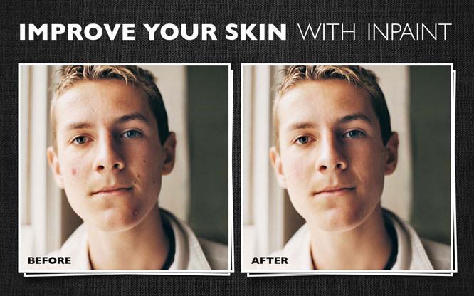 Improve Skin