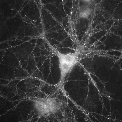 Hippocampal Neuron by jochen