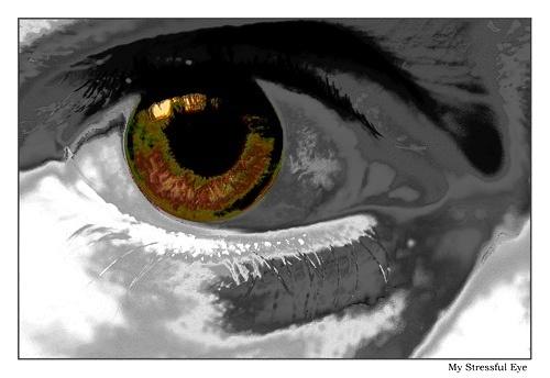 My Stressful Eye by tce5