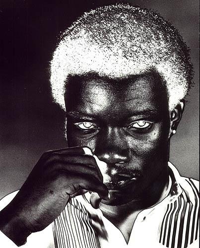 Albino Portrait by pentaxpete