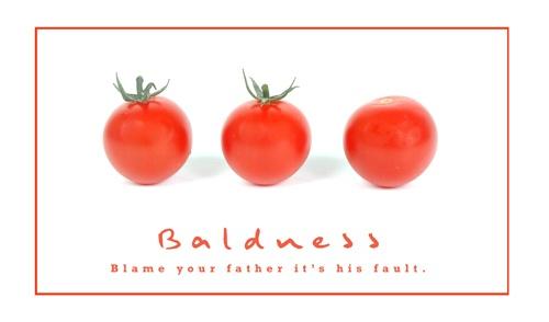Baldness by ddunn