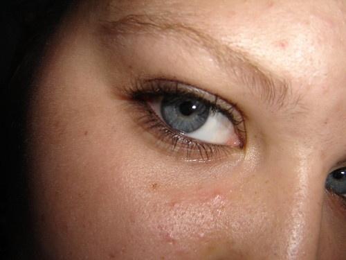 my eye by spanner99