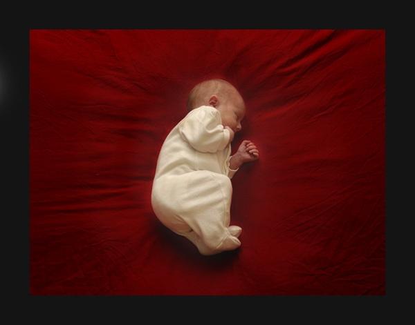 Baby Kidneybean by monosodium