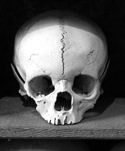 Skull by Bevy