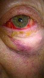 8 day red eye