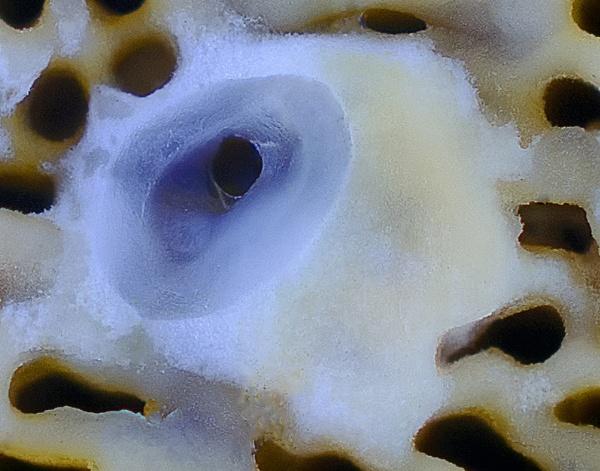 Bracket Fungus by jbsaladino