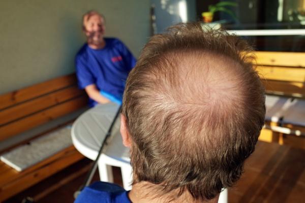 ...balding men... by josa