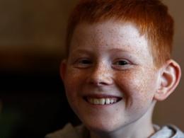 Adam's freckles
